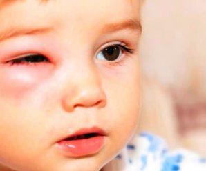 Obat Flu Mata Berair Untuk Balita dan Anak Secara Alami